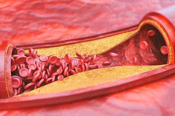 Норма холестерина